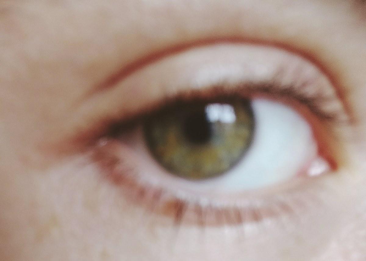 I Don't Have a Mind's Eye: Discovering MyAphantasia